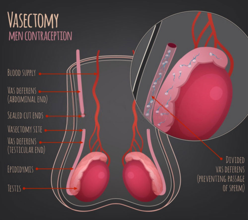 Vasectomy Urology Care