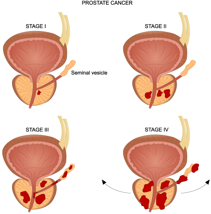 prostate cancer urology caretreatment for prostate cancer